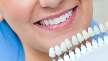 Tooth whitening guide